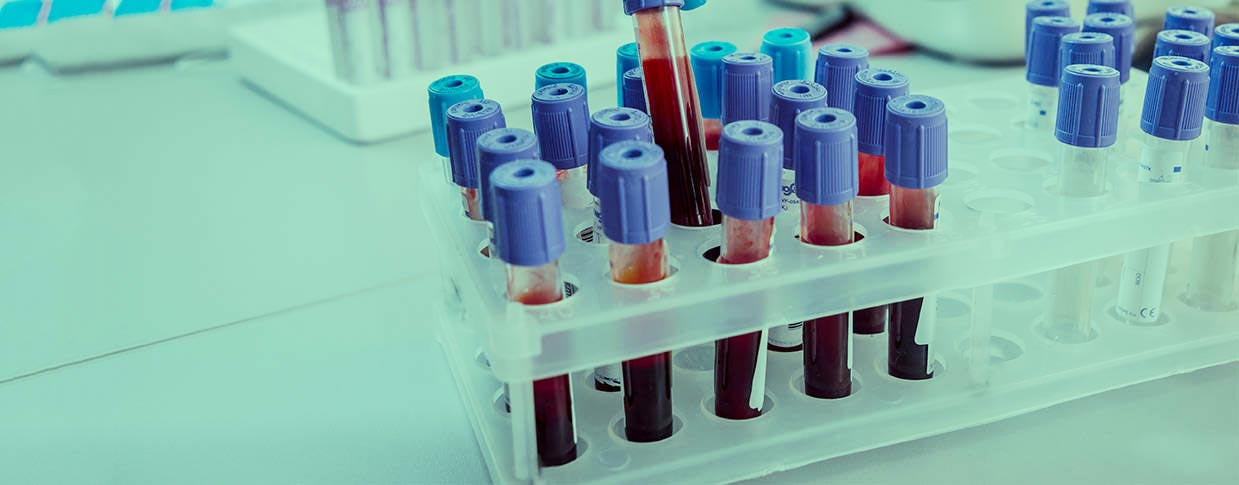 autoanalisi sangue e urine